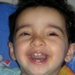赤ちゃんの受け口(反対咬合)対策~原因は遺伝?!いつから治療すればいいの?